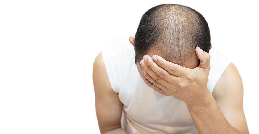 3 vanliga orsaker till håravfall